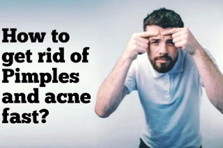 How to get rid of Pimples and acne fast and naturally ?