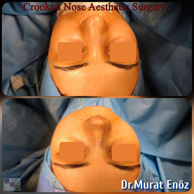 Rhinoplasty Operation For Crooked Nose,Crooked Nose Aesthetic Surgery For Female,Twisted Nose Rhinoplasty,