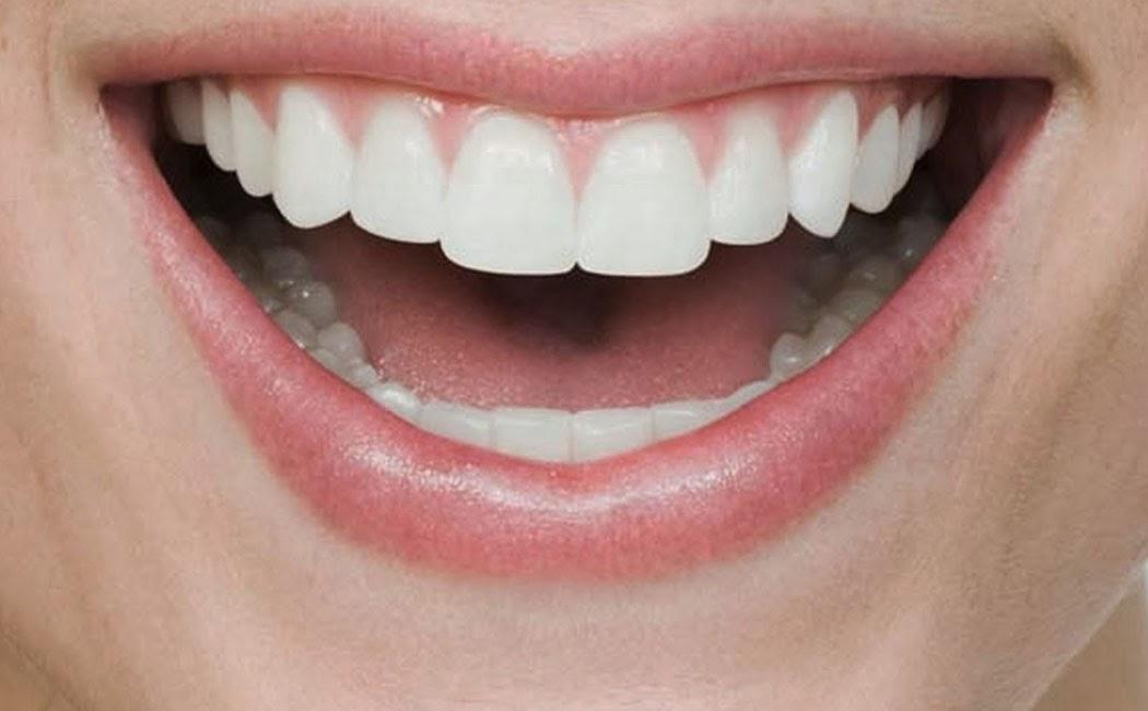 Tips dan Cara Memutihkan Gigi secara Alami