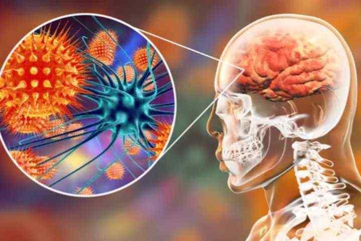 Penyakit Meningitis: Gejala, Penyebab dan Cara Mencegah