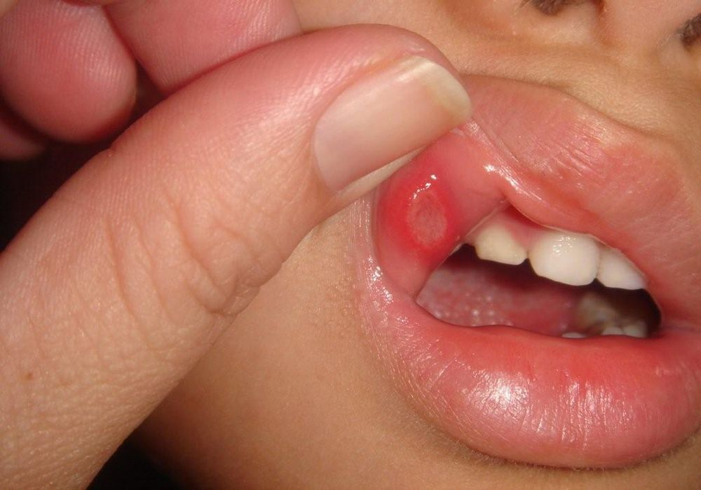 Mouth ulcers
