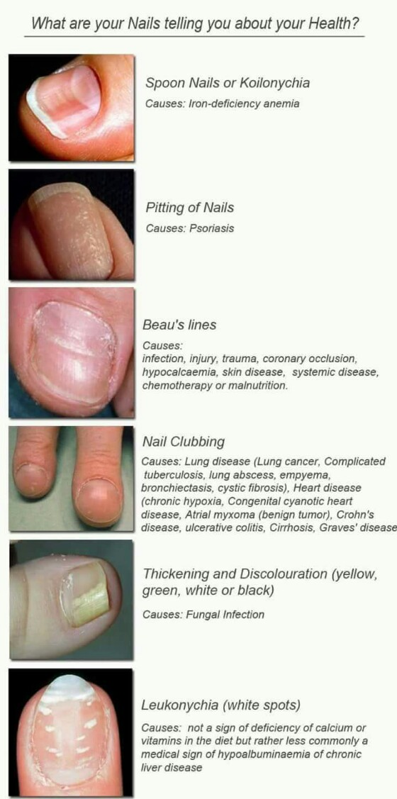 nail clubbing what your nails reveal about your health | nail ...