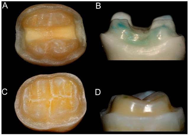 PDF: Effect of cavity preparation design and ceramic type on the stress distribution, strain and fracture resistance of CAD/CAM onlays in molars