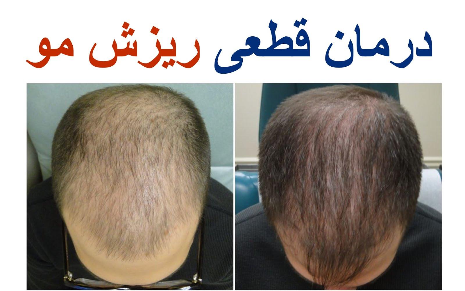 Pezeshke Bartar پزشک برتر: best hair loss treatment