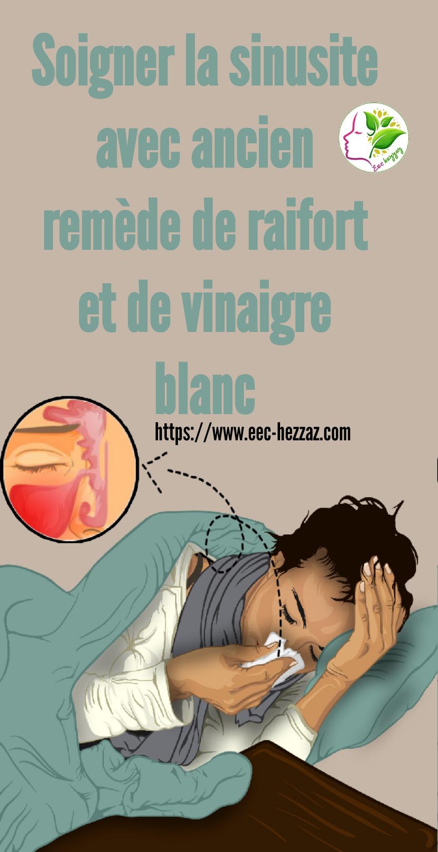 Soigner la sinusite avec ancien remède de raifort et de vinaigre blanc