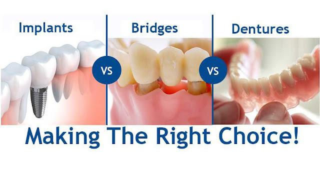 dental bridge alternative options for replacement of missing teeth