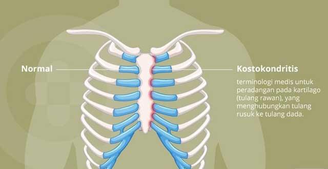 Ada Tulang Rawan yang Menyusun Bagian Tulang Rusuk