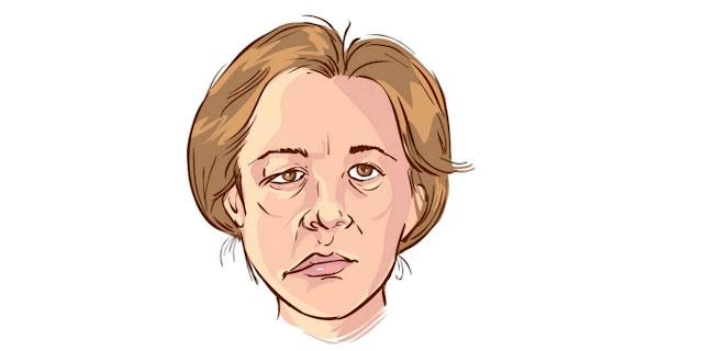 اسباب شلل الوجه النصفي وطرق العلاج