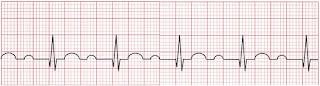 An ECG of first-degree atrioventricular block.