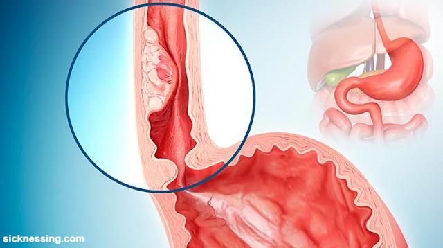 تضيق المريء أو التهاب المريء