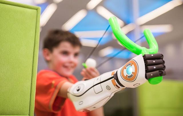 Perkembangan Teknologi Tangan Bionic untuk Penyandang Disabilitas