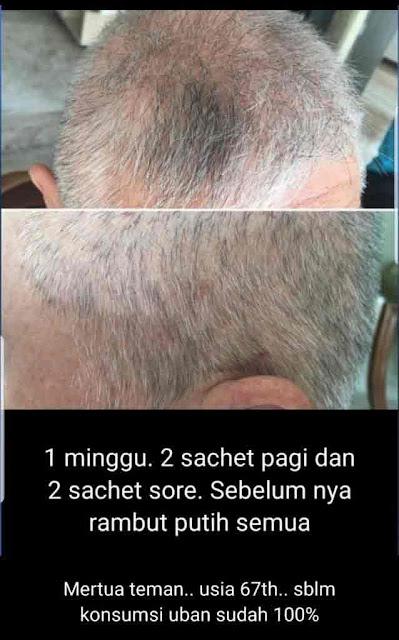 Agen Jual: Vitamin SOP Subarashi, SOP 100 Bagus dan Utsukushii Beauty And Skin Center, di Pesisir Selatan