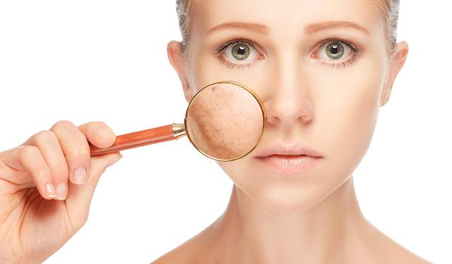 7 penyebab dan cara mengatasi kulit kusam