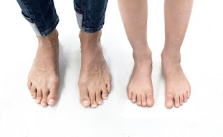 Male & Female Celebrities With Ugly Feet