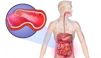Complicaciones enfermedad Crohn