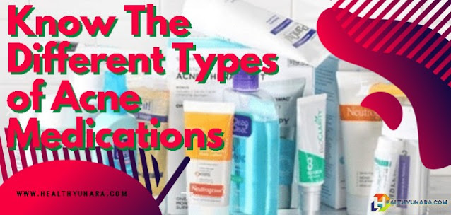 Know The Different Types of Acne Medications