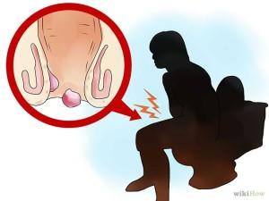 https://3.bp.blogspot.com/-H-Uhczrplm4/WJfxiJJZRDI/AAAAAAAAAKE/ftdj2EfhvY0O98XKVL_-2DUwGasJR6NXACLcB/s1600/penyakit-ambeien-pada-wanita.jpg