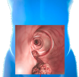 how long does a colonoscopy take?