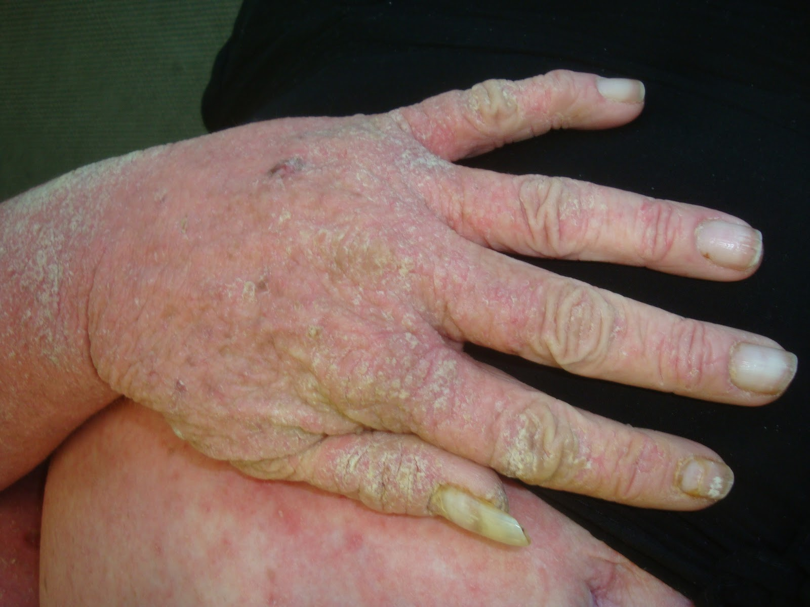 Scabies Symptoms, Treatment, Causes - MedicineNet