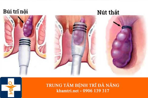 Khám và chữa bệnh trĩ ở đâu hiệu quả và giá rẻ nhất tại Đà Nẵng 03