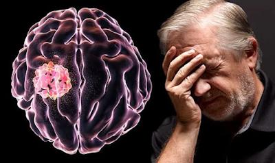 Inilah Gejala Kanker Otak dan Cara Mencegahnya | Roliyan.com