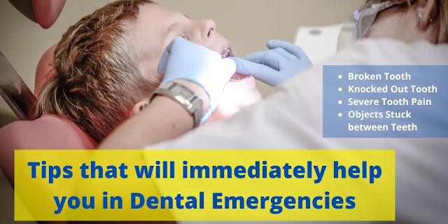 Tips that will immediately help you in Dental Emergencies