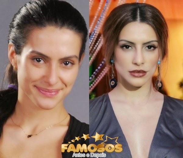 Imagens zuando famosos antes e depois