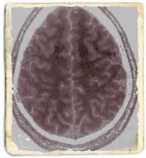 wiki acupunctura beneficii pentru creier si anxietate