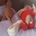 Bebê tem perna quebrada durante parto em hospital de Ipiaú