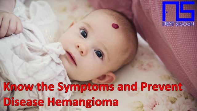 Hemangioma Disease, Hemangioma Disease Information, Hemangioma Disease Article, Hemangioma Disease Information, Hemangioma Symptoms, Causes of Hemangioma Disease, Factors Causing Hemangioma Disease, Hemangioma Disease Impacts, Hemangioma Medication, Relief of Hemangioma Symptoms, Overcoming Hemangioma Symptoms, Hemangioma Disease Symptoms, Hemangioma Disease Management , Things to do with Hemangioma, What is Hemangioma, Definition of Hemangioma, Information on Understanding Hemangioma, Symptoms of Cause and How to Overcome Hemangioma, Hemangioma Detail Info, Tips to Relieve Hemangioma, Tips to Overcome Hemangioma Disease, Overview of Information About Hemangioma, recognize the causes and symptoms of Hemangioma, prevent Hemangioma by knowing the symptoms and causes.
