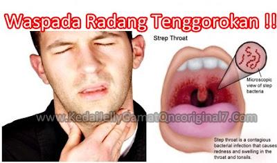 Penyebab Radang Tenggorokan / Faringitis & Obat Radang Tenggorokan Alami yang Terbukti Ampuh, Efektif dan Aman