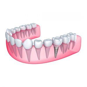 http://westchester-dentures.com/full-dentures.html