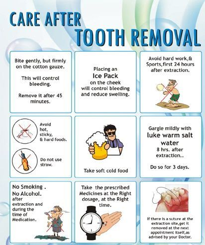Wisdom Teeth Removal and recovery tips