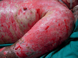 Toxic epidermal necrolysis, one of the severe type of rashes caused by Tylenol.images