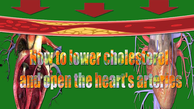 How to lower cholesterol and open the heart's arteries