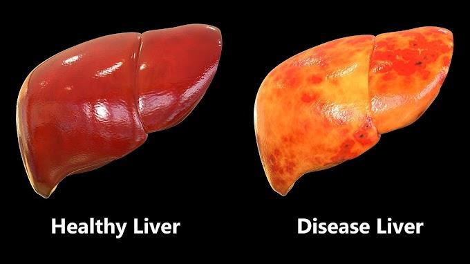 Minyak Kelapa Murni Meningkatkan Kadar Antioksidan, Baik untuk Penderita Gangguan Liver