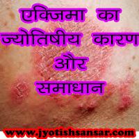 एक्जिमा का ज्योतिषीय कारण और समाधान, eczema kya hota hai, eczema ka gharelu ilaaj