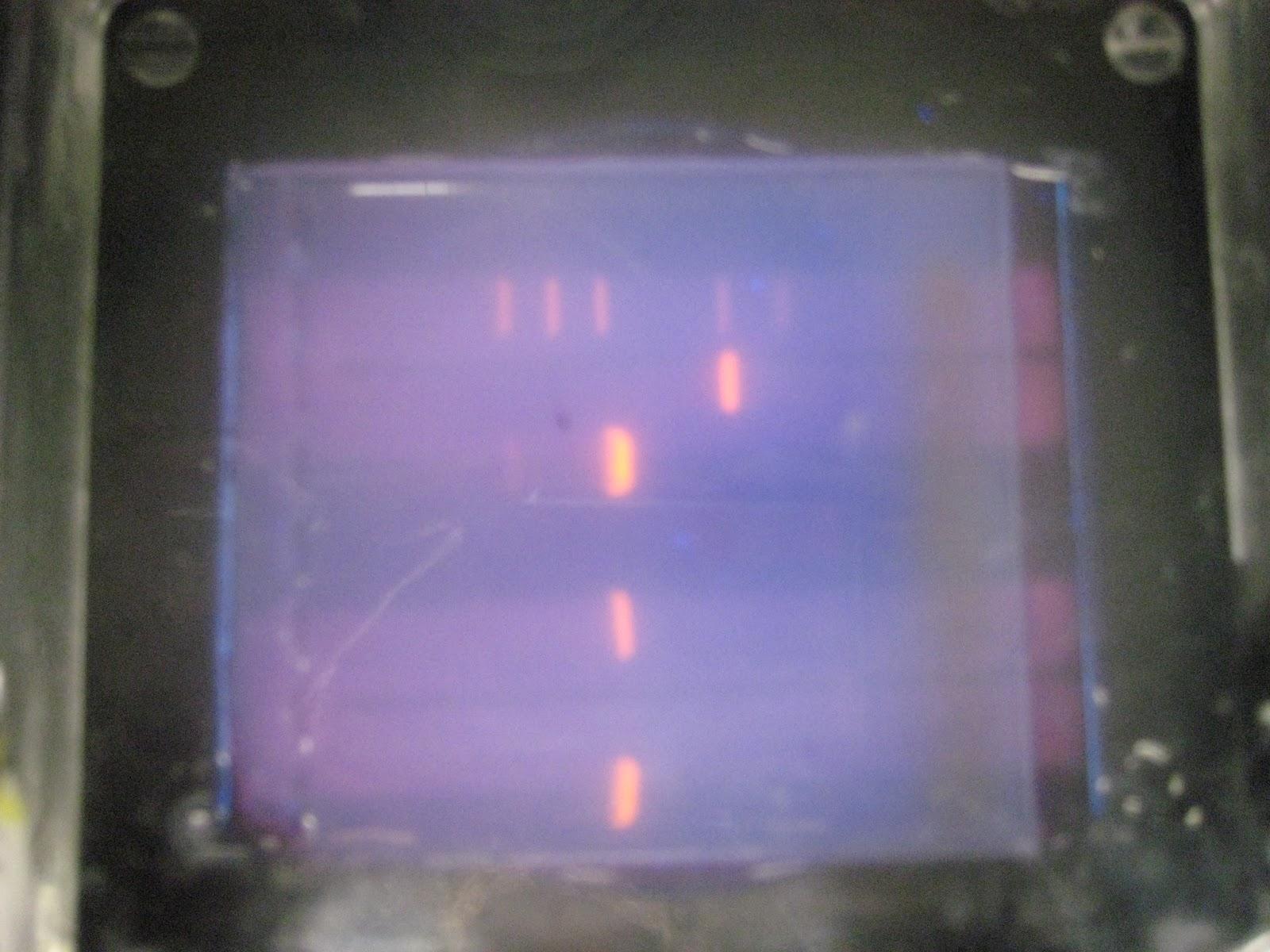 Dvc Microbiology 146 Fall 11 Gard Lab 27 Identifying Gm