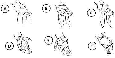 balutan pada telapak tangan