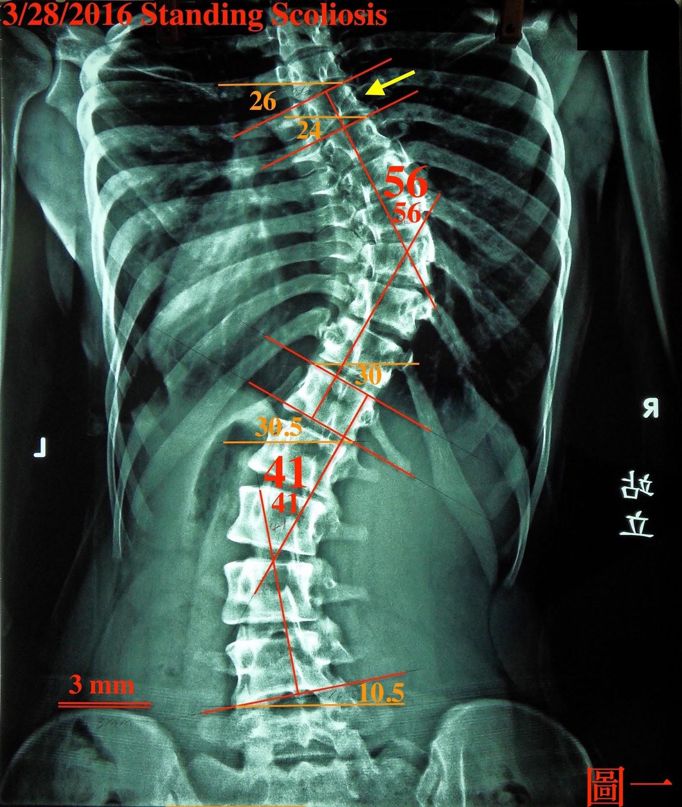 胸椎側彎為什麼總是那麼難進步-下 個案實例 - 閻曉華脊骨神經醫學網