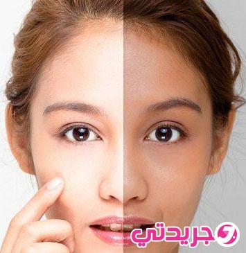 خلطة سهلة وسريعة في تبييض الوجه من اول استعمال