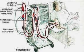 Cara Cepat Mengobati Penyakit Gagal Ginjal Secara Alami ...