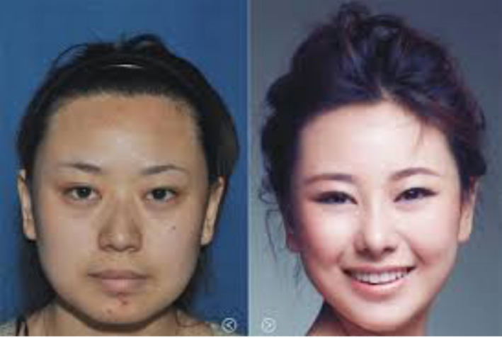 Пластические операции по изменению формы лица