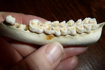 Penyebab dan Cara Pencegahan Caries, Biang Gigi Berlubang