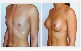 Savoir tous sur l'Augmentation mammaire