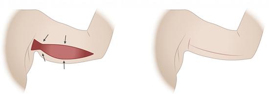 brachioplastie tunisie