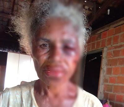 Crueldade humana: uma senhora de 75 anos  é brutalmente espancada por bandidos em IPIRÁ-BA