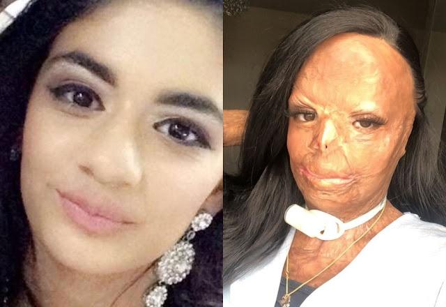 У школьницы полностью сгорело лицо, когда она прошла мимо плиты с шампунем на волосах!