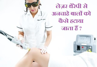 LASER-THERAPY-HAIR-REMOVAL-IN-HINDI