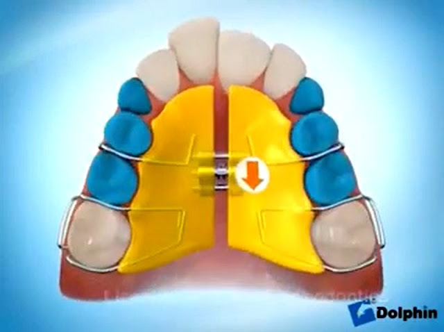 MAXILLARY EXPANDER with the use of Removable Appliance